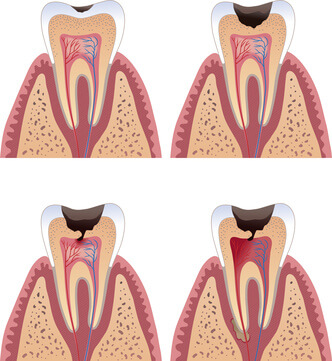 cavities_and_fillings_diagram